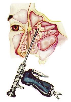 Sinus endoscopy1.jpg