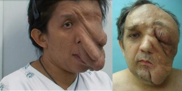Giant-Facial-Tumor-Eats-Away-Half-of-Woman-Face-Exposes-Her-Brain-2.jpg