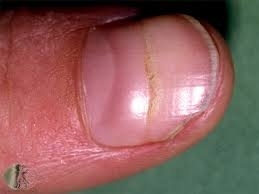 nail 2.jpg