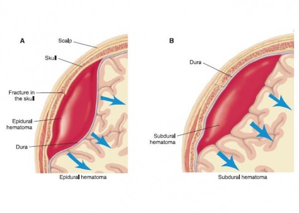 Epidural&Subdural Hematoma(1) (1).jpg
