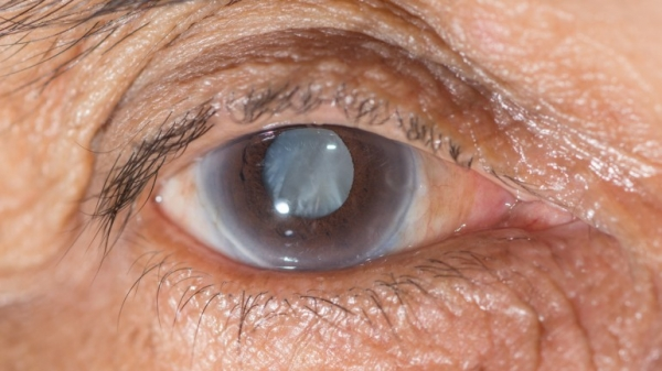 eye-pressure-sensor.jpg