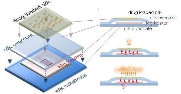 dissolving-infection-treating-implants.jpg