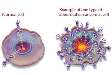 img_cancer_cells.jpg